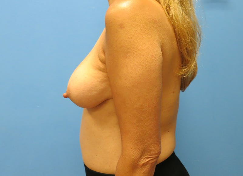Breast Reconstruction - Implant Gallery - Patient 21366006 - Image 5