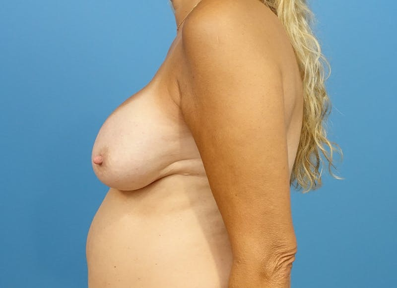 Breast Reconstruction - Implant Gallery - Patient 21366006 - Image 6