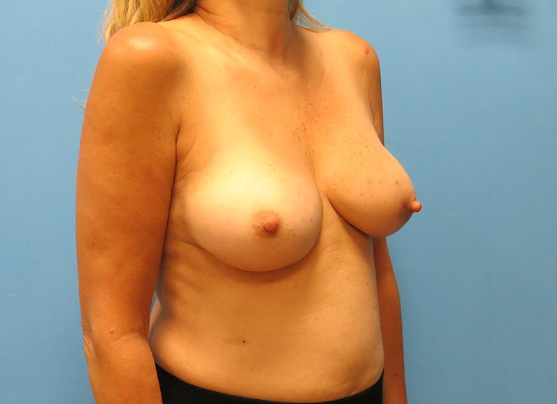 Breast Reconstruction - Implant Gallery - Patient 21366006 - Image 7