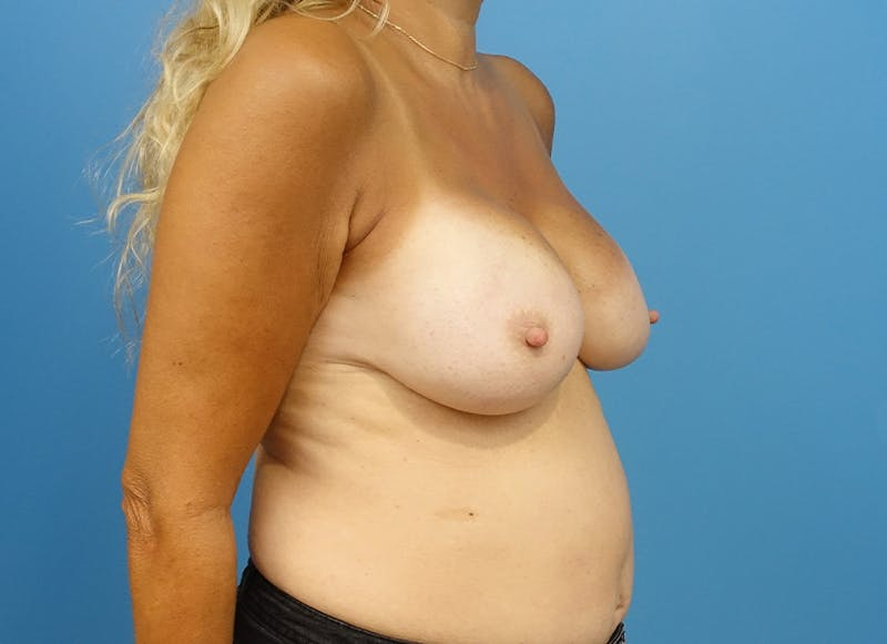Breast Reconstruction - Implant Gallery - Patient 21366006 - Image 8