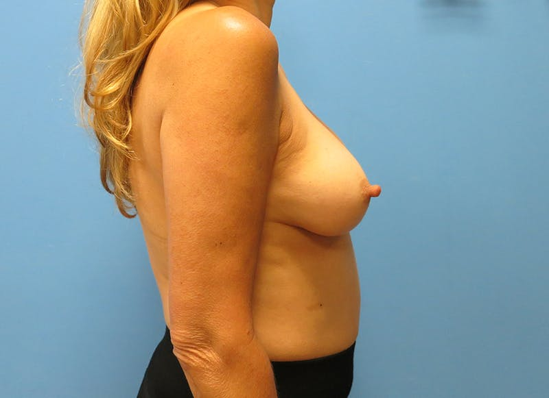 Breast Reconstruction - Implant Gallery - Patient 21366006 - Image 9