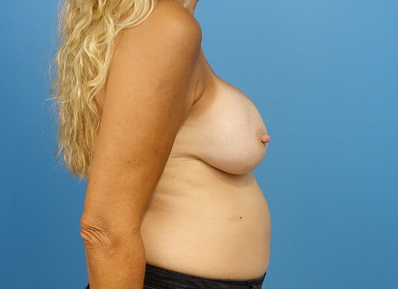 Breast Reconstruction - Implant Gallery - Patient 21366006 - Image 10