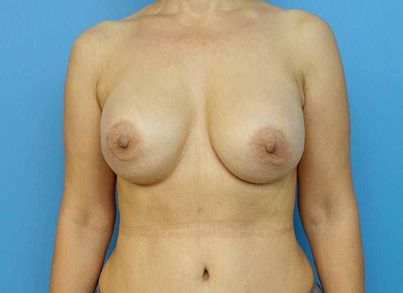 Breast Reconstruction - Implant Gallery - Patient 21366007 - Image 1