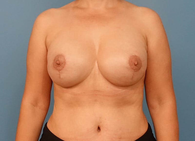 Breast Reconstruction - Implant Gallery - Patient 21366007 - Image 2