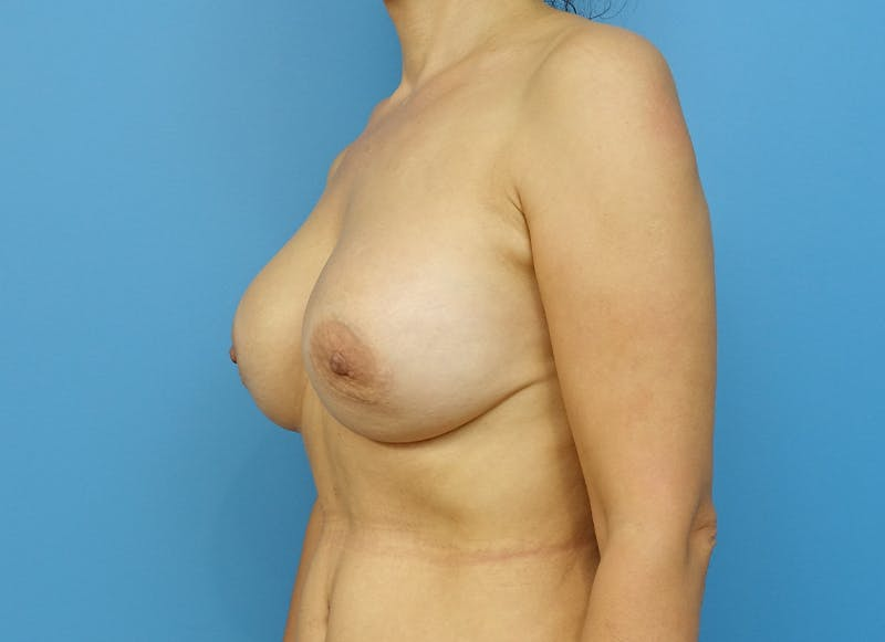 Breast Reconstruction - Implant Gallery - Patient 21366007 - Image 3
