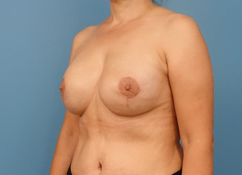 Breast Reconstruction - Implant Gallery - Patient 21366007 - Image 4