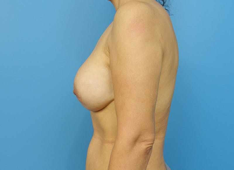Breast Reconstruction - Implant Gallery - Patient 21366007 - Image 5