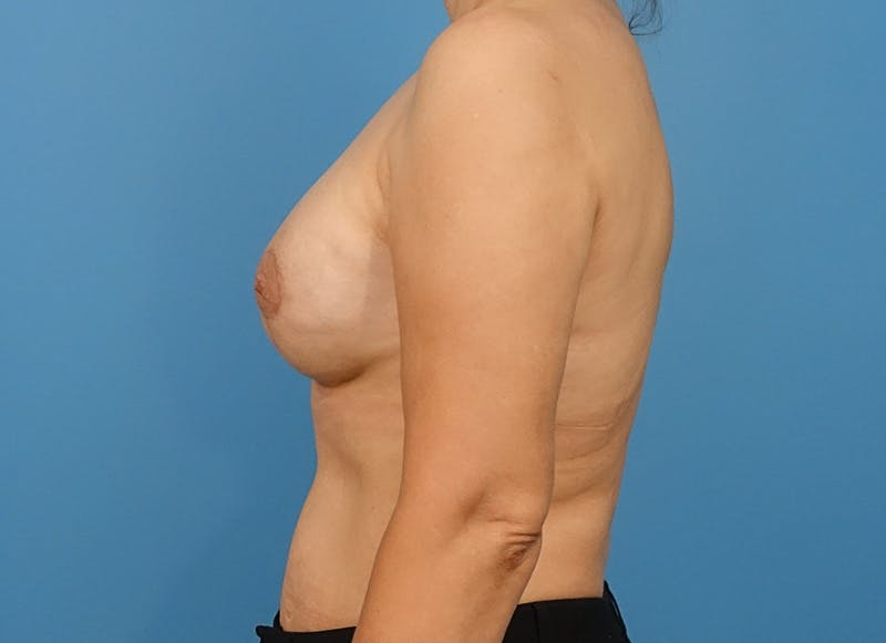 Breast Reconstruction - Implant Gallery - Patient 21366007 - Image 6