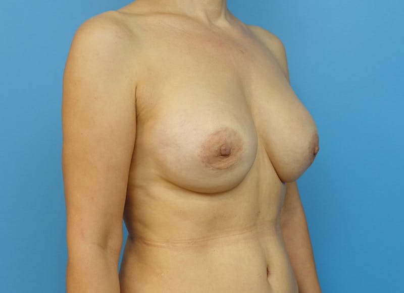 Breast Reconstruction - Implant Gallery - Patient 21366007 - Image 7