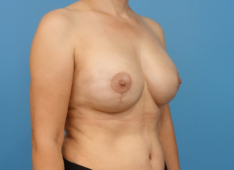 Breast Reconstruction - Implant Gallery - Patient 21366007 - Image 8