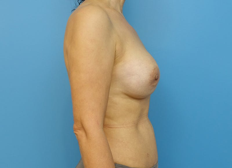 Breast Reconstruction - Implant Gallery - Patient 21366007 - Image 9