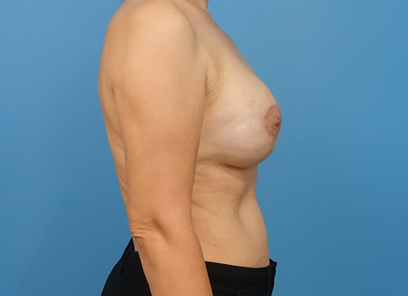Breast Reconstruction - Implant Gallery - Patient 21366007 - Image 10