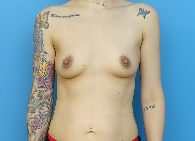 Breast Reconstruction - Implant Gallery - Patient 21366008 - Image 1