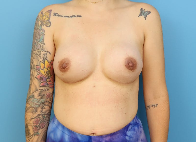 Breast Reconstruction - Implant Gallery - Patient 21366008 - Image 2