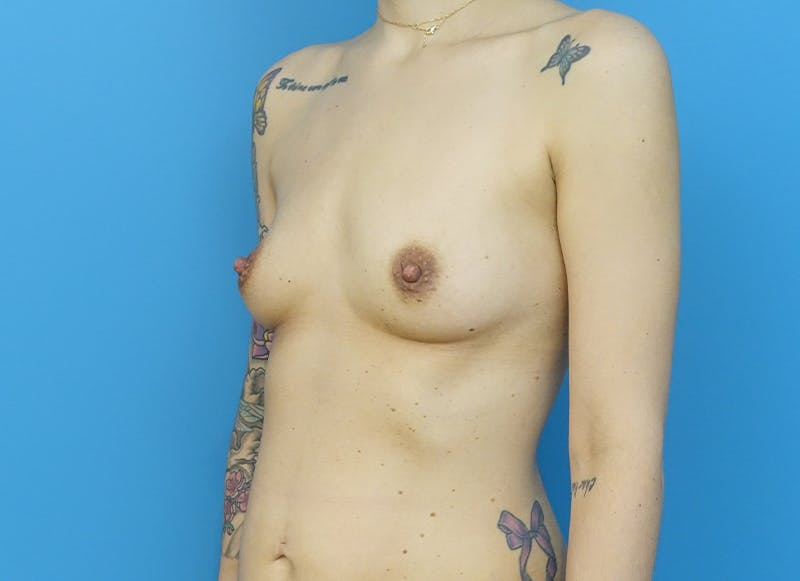 Breast Reconstruction - Implant Gallery - Patient 21366008 - Image 3