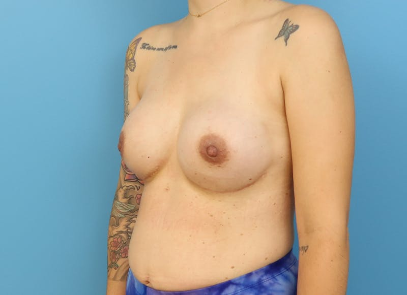 Breast Reconstruction - Implant Gallery - Patient 21366008 - Image 4
