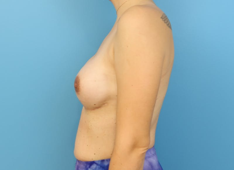 Breast Reconstruction - Implant Gallery - Patient 21366008 - Image 6