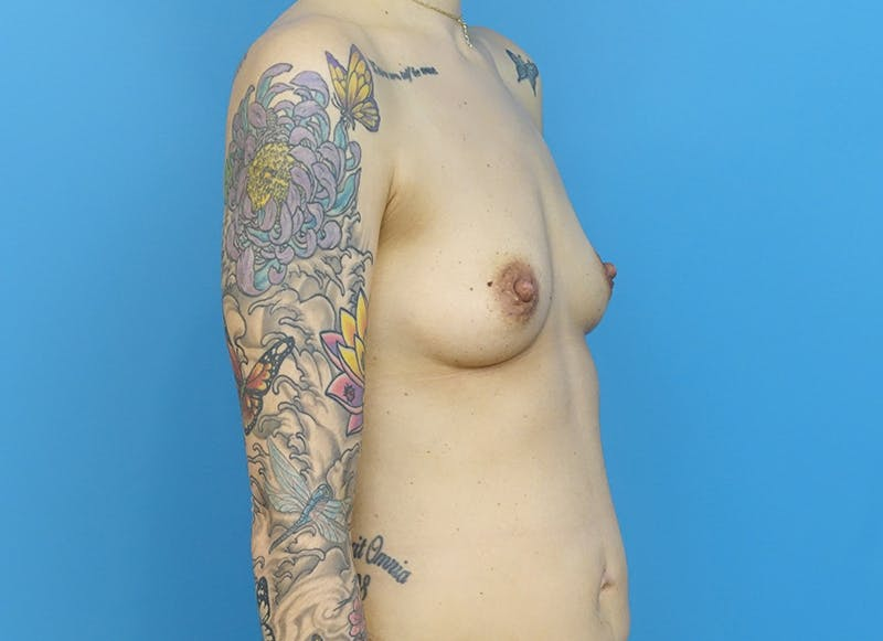 Breast Reconstruction - Implant Gallery - Patient 21366008 - Image 7