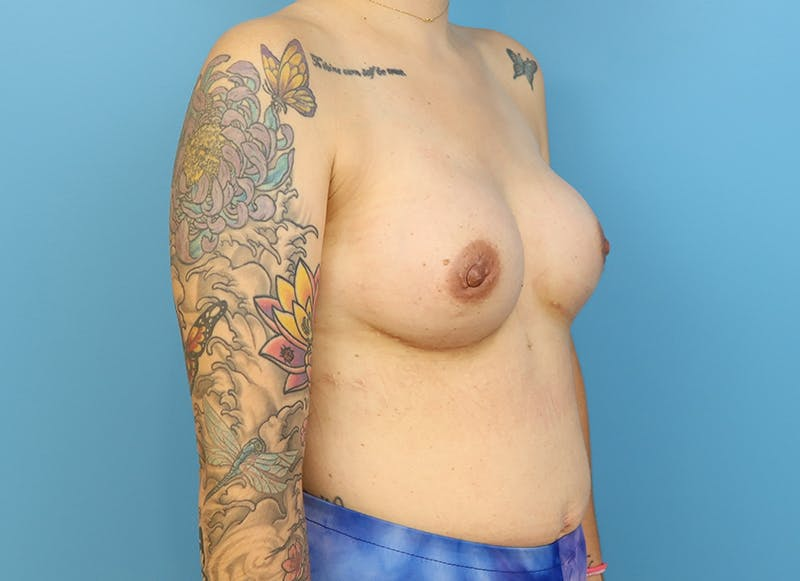 Breast Reconstruction - Implant Gallery - Patient 21366008 - Image 8
