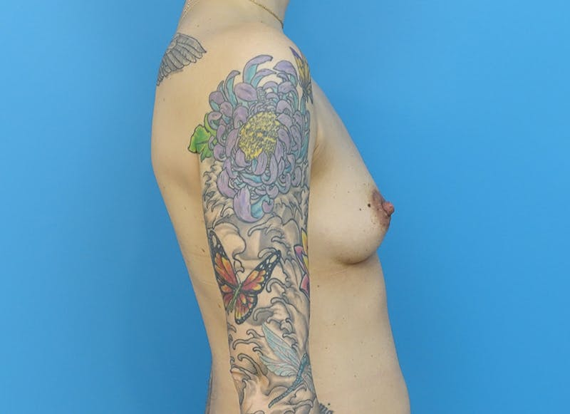 Breast Reconstruction - Implant Gallery - Patient 21366008 - Image 9