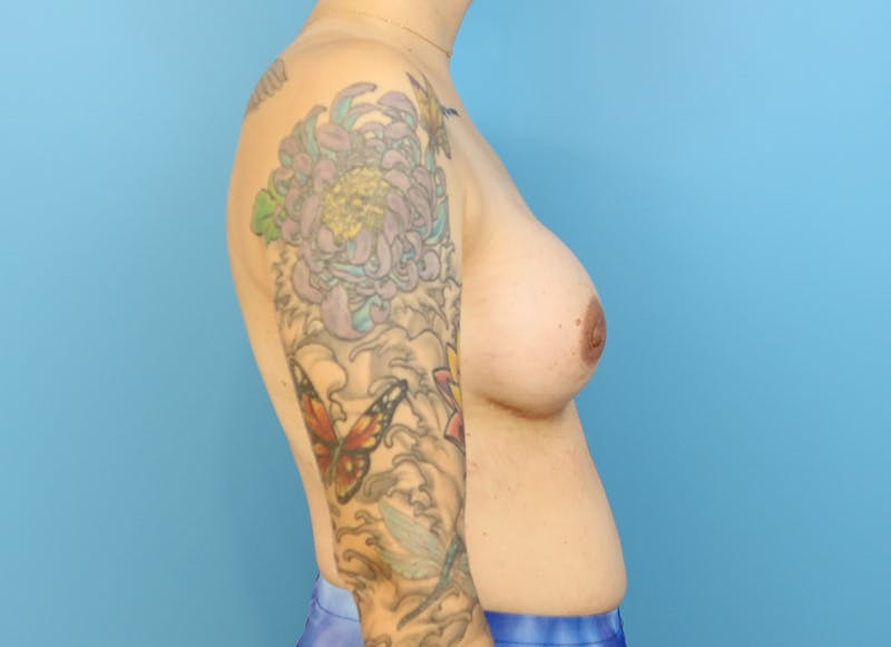 Breast Reconstruction - Implant Gallery - Patient 21366008 - Image 10