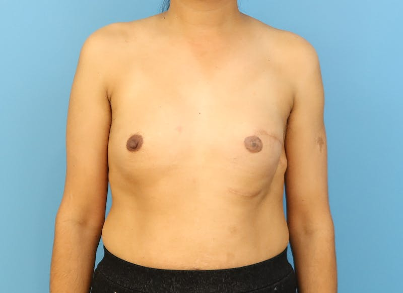 Breast Reconstruction - Implant Gallery - Patient 21366009 - Image 1