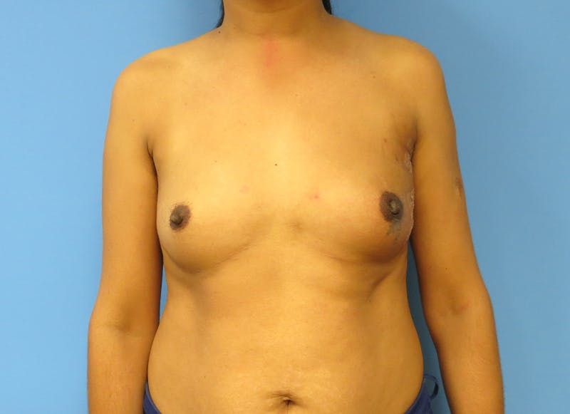 Breast Reconstruction - Implant Gallery - Patient 21366009 - Image 2