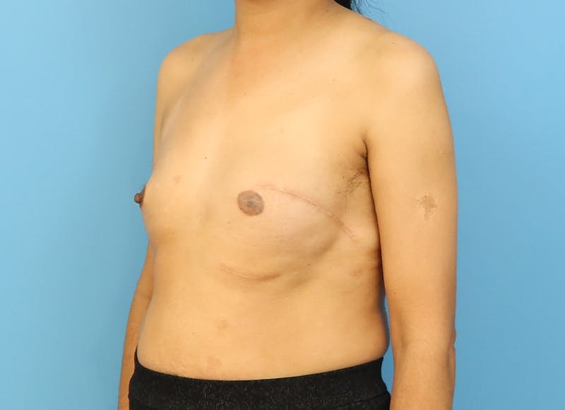 Breast Reconstruction - Implant Gallery - Patient 21366009 - Image 3