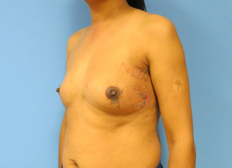 Breast Reconstruction - Implant Gallery - Patient 21366009 - Image 4