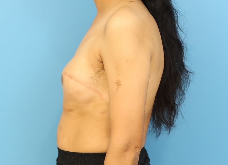 Breast Reconstruction - Implant Gallery - Patient 21366009 - Image 5