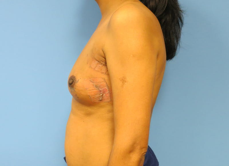 Breast Reconstruction - Implant Gallery - Patient 21366009 - Image 6
