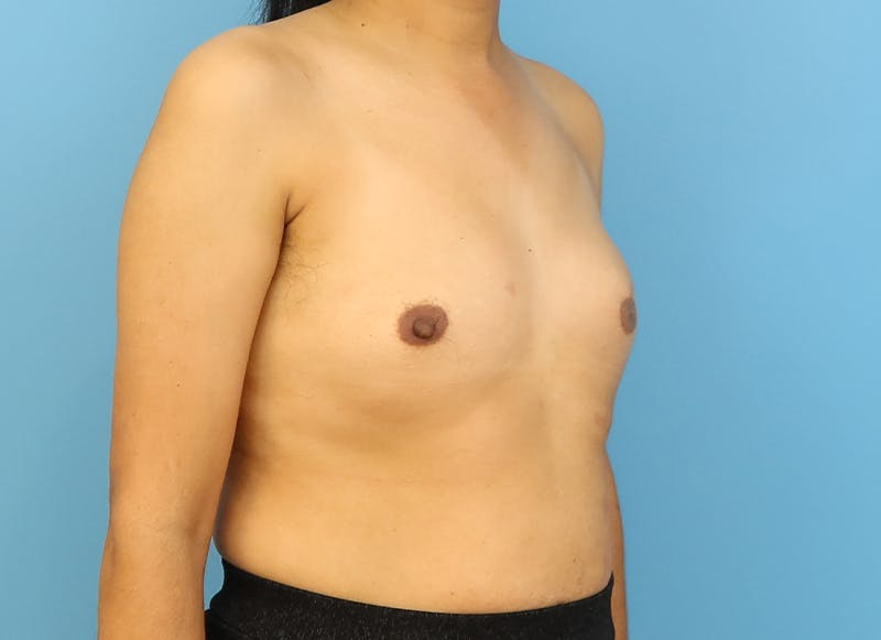 Breast Reconstruction - Implant Gallery - Patient 21366009 - Image 7