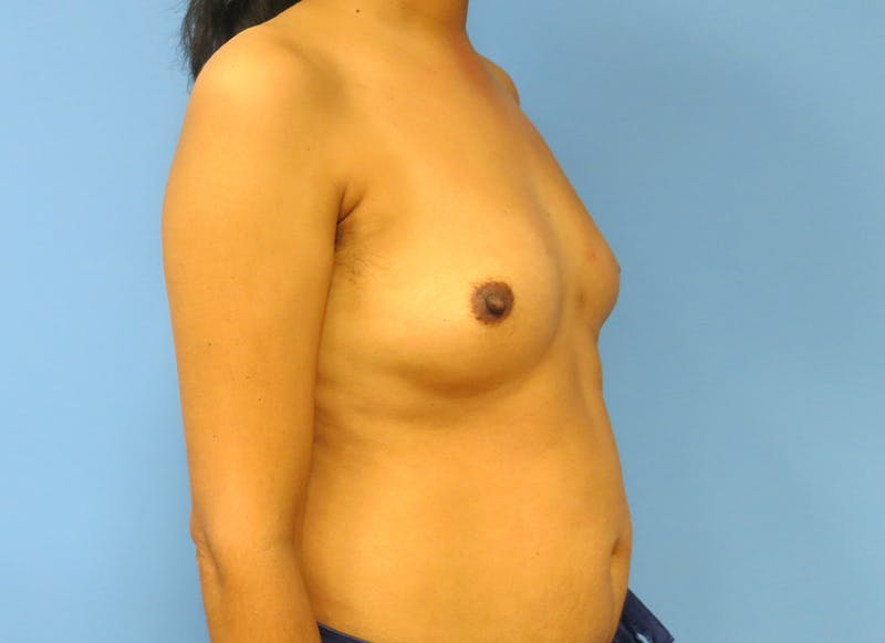 Breast Reconstruction - Implant Gallery - Patient 21366009 - Image 8