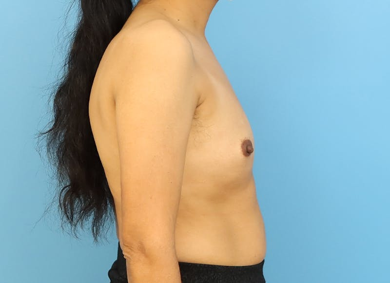 Breast Reconstruction - Implant Gallery - Patient 21366009 - Image 9