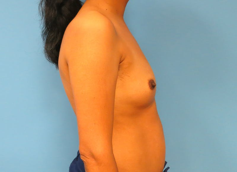 Breast Reconstruction - Implant Gallery - Patient 21366009 - Image 10