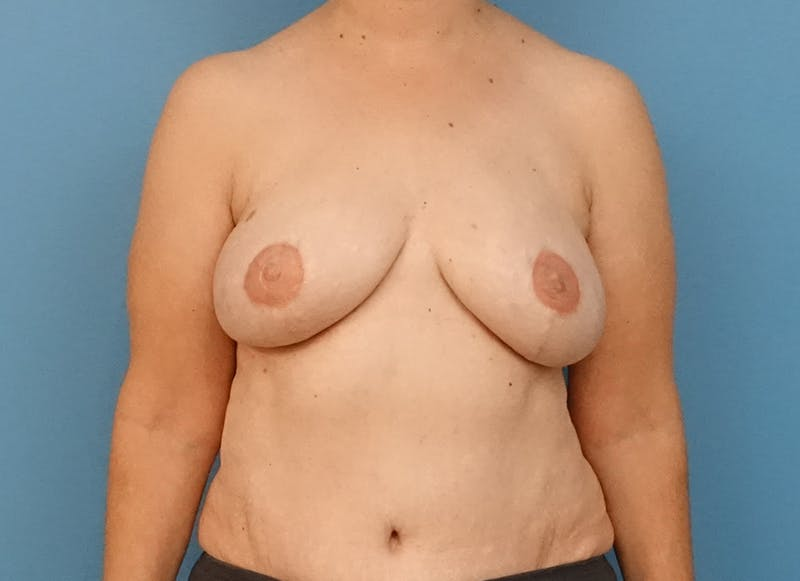 Breast Reconstruction - Flap Gallery - Patient 3831114 - Image 2