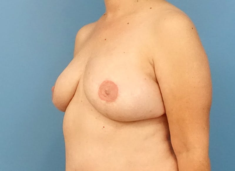 Breast Reconstruction - Flap Gallery - Patient 3831114 - Image 4