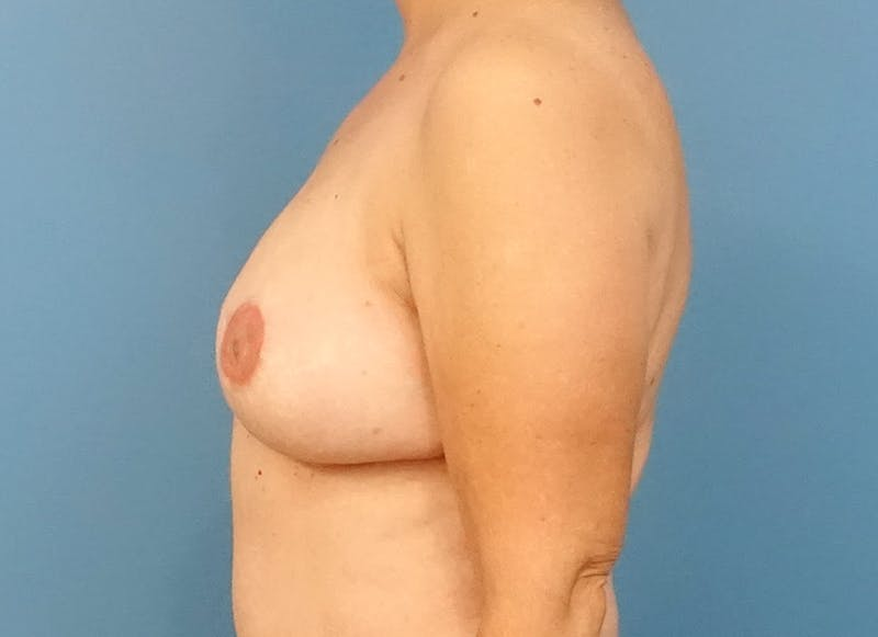 Breast Reconstruction - Flap Gallery - Patient 3831114 - Image 6