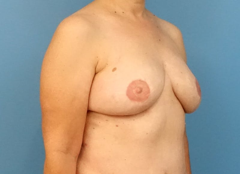 Breast Reconstruction - Flap Gallery - Patient 3831114 - Image 8