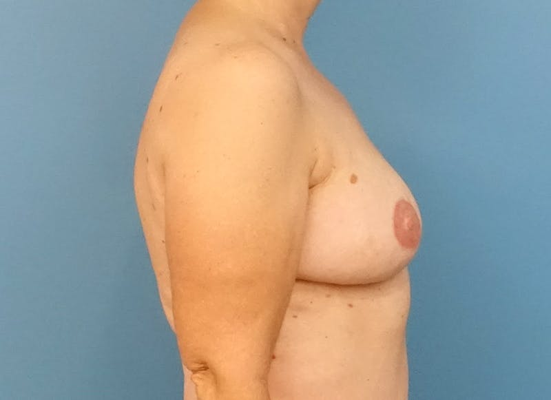 Breast Reconstruction - Flap Gallery - Patient 3831114 - Image 10