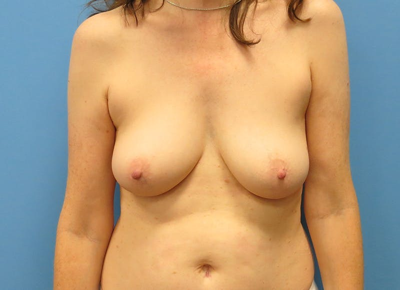 Breast Reconstruction - Hybrid Gallery - Patient 32790167 - Image 1