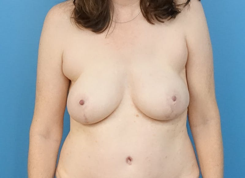 Breast Reconstruction - Hybrid Gallery - Patient 32790167 - Image 2