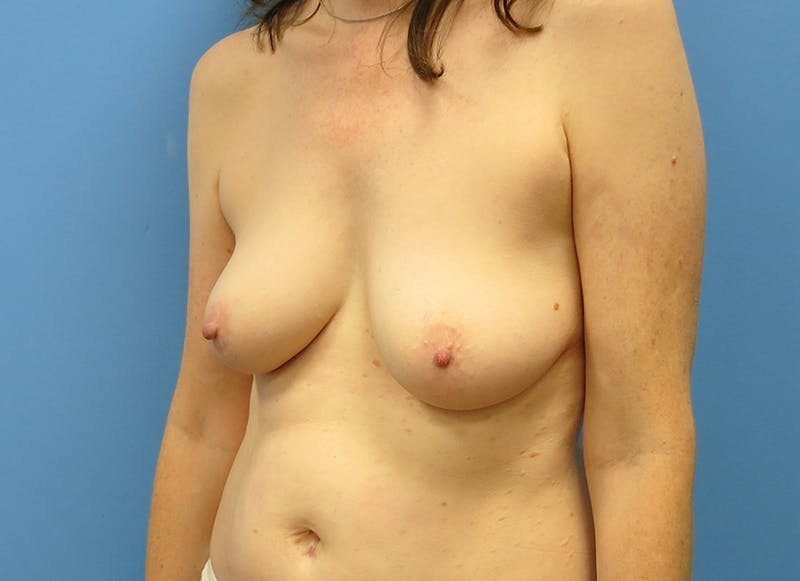 Breast Reconstruction - Hybrid Gallery - Patient 32790167 - Image 3
