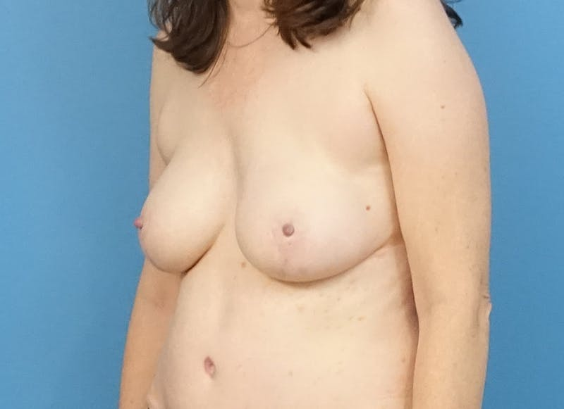 Breast Reconstruction - Hybrid Gallery - Patient 32790167 - Image 4