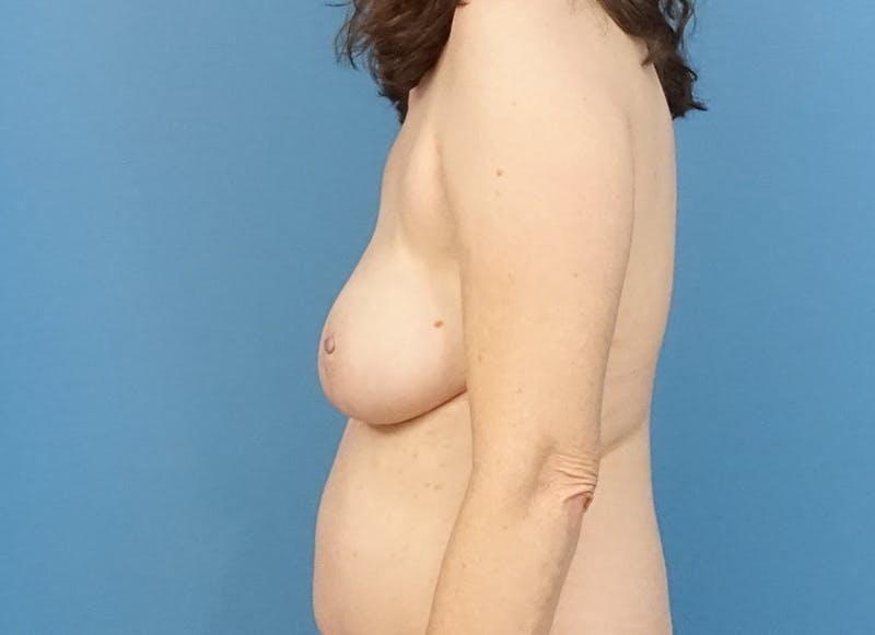 Breast Reconstruction - Hybrid Gallery - Patient 32790167 - Image 6