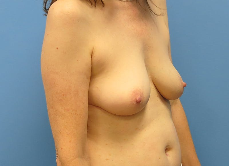 Breast Reconstruction - Hybrid Gallery - Patient 32790167 - Image 7