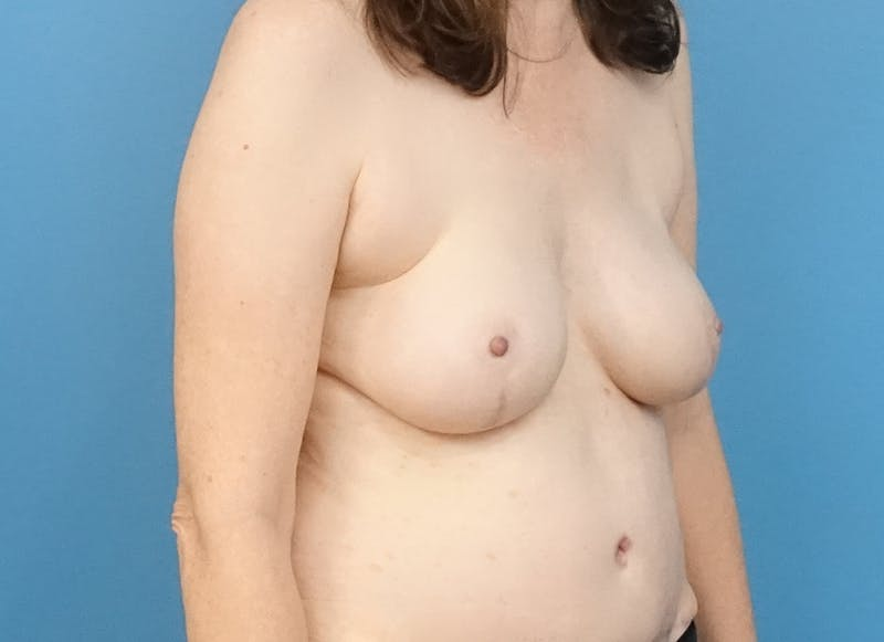 Breast Reconstruction - Hybrid Gallery - Patient 32790167 - Image 8
