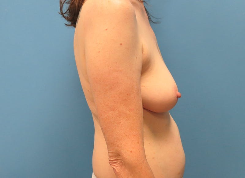 Breast Reconstruction - Hybrid Gallery - Patient 32790167 - Image 9