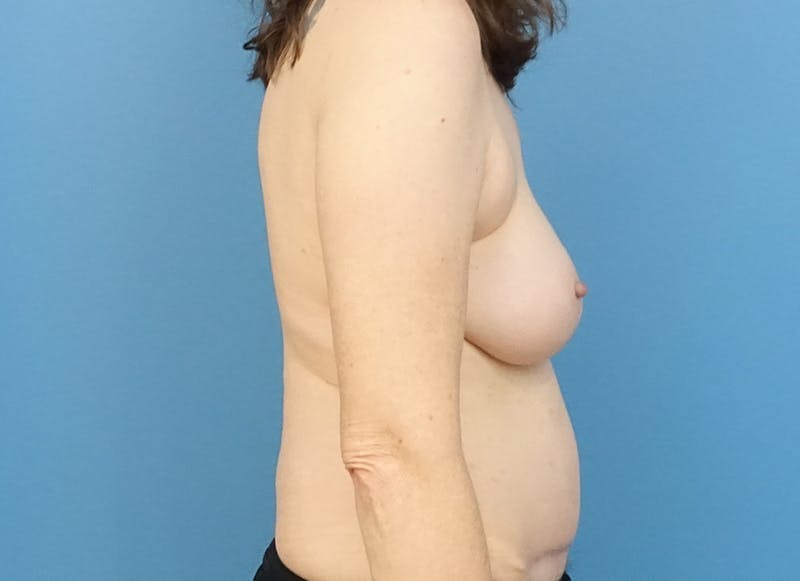 Breast Reconstruction - Hybrid Gallery - Patient 32790167 - Image 10