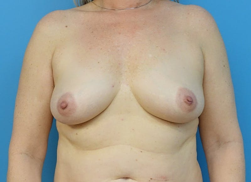 Breast Reconstruction - Hybrid Gallery - Patient 32790442 - Image 1